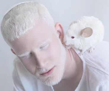 Stop discrimination against albinos: UN chief