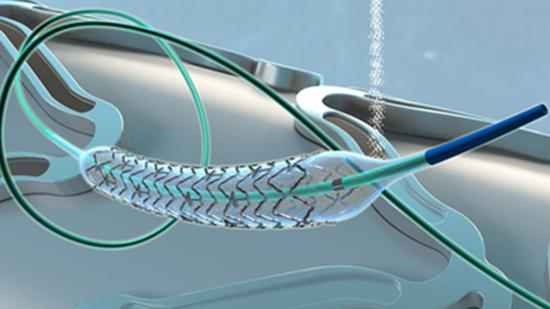 Chinese stents to help millions with heart disease