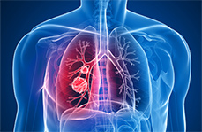 Lung tumors hijack bacteria for survival: study