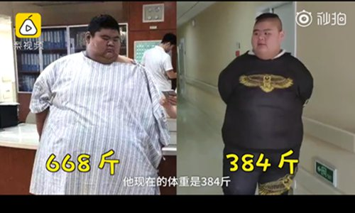 China's heaviest man loses weight, gains height