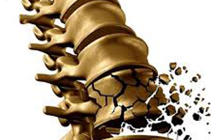 Scientists get new molecular insights on bone loss