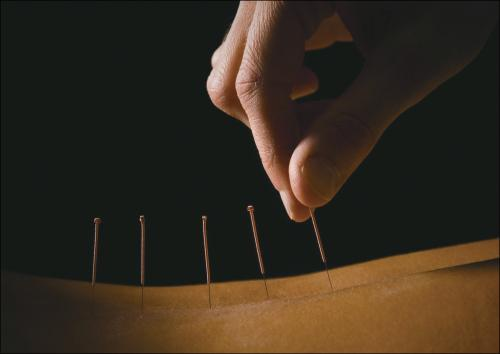 Tiny needle, big role -- the rebirth of acupuncture in India