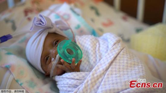 出生于加利福尼亚的世界上最小的存活婴儿