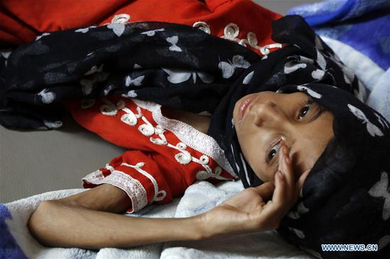 Hunger kills Yemen's children in silence, no one hears