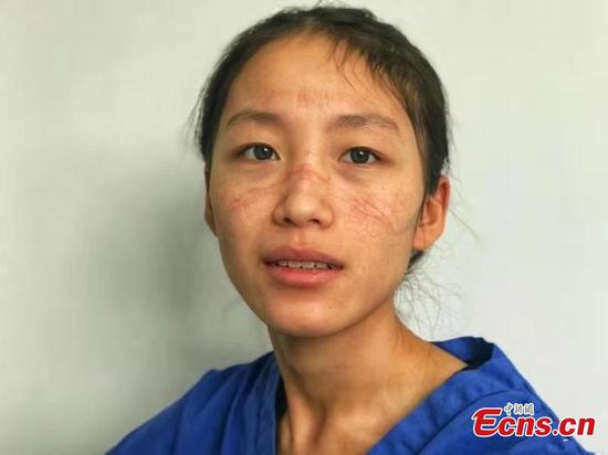 Picture of Chinese medics with mask marks touch netizens