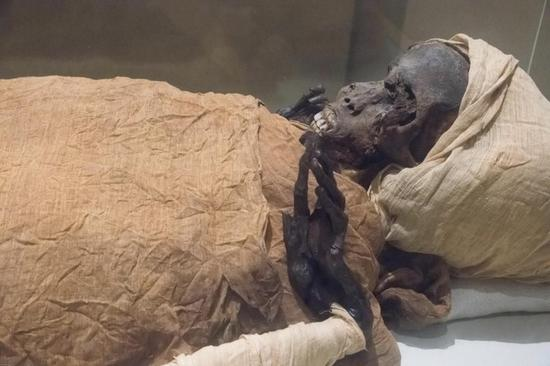 CT scan shows ancient Egyptian King Seqenenre Taa II killed in battle with invaders