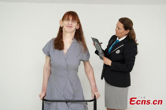 24-year-old from Turkey confirmed as tallest living woman