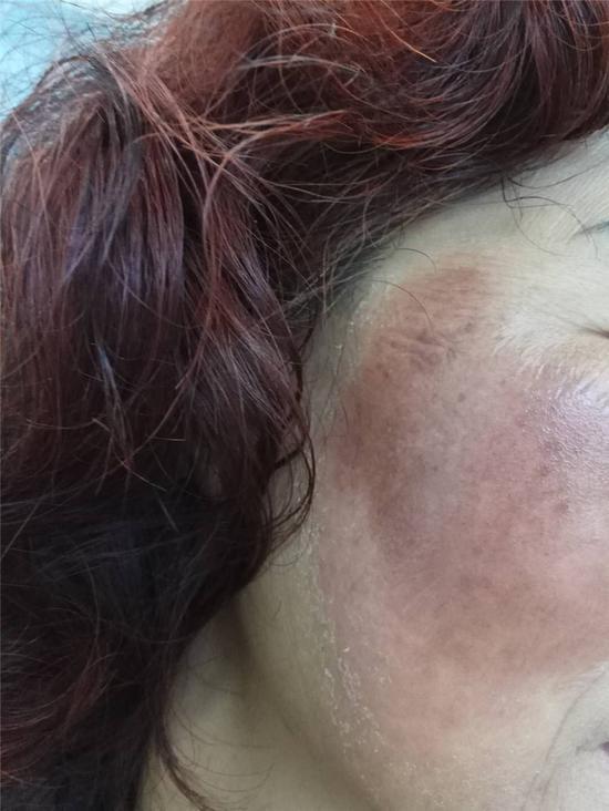 图为张阿姨过敏的脸部皮肤。医院供图