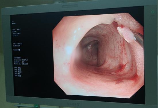 图为:医生们在肠镜下摘除患者肠道里的息肉  叶倦提供
