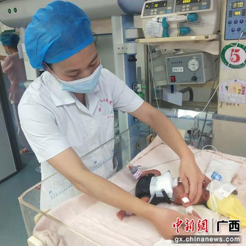 自治區南溪山醫院成功救治一例早產極低體重患兒