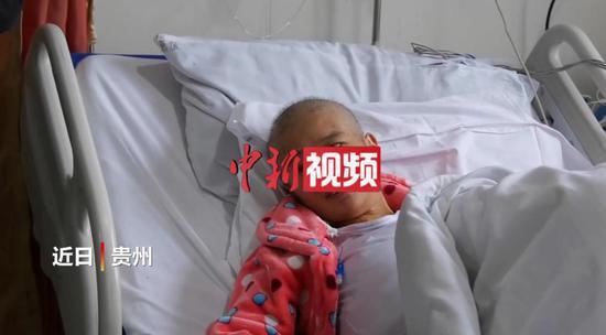 """大发棋牌玩法贵州 """"巨肚妈妈""""手术成功 8小时取出20斤肿瘤和积液"""